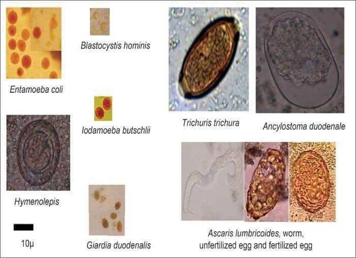 الميكروبات – Microbes