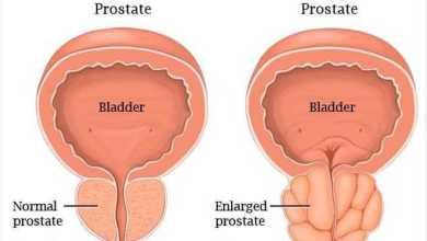 تقنية جديدة تعتمد على النانوتكنولوجي لتشخيص سرطان البروستاتا