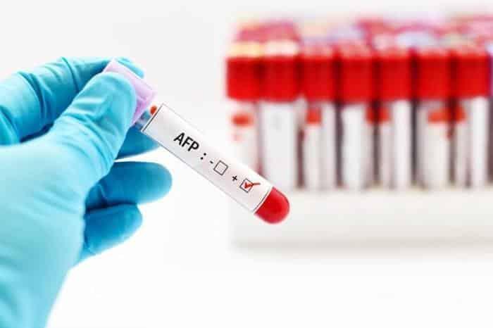 تحليل الألفا فيتو بروتين–Alpha Feto-protein in Blood