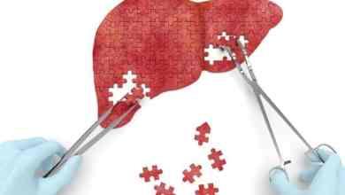 فريق ياباني يتوصل للجزيء المسئول عن تكاثر خلايا الكبد
