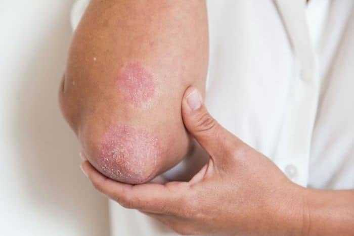 باحثون يتوصلون إلى أسباب عودة أعراض الصدفية بعد علاجها
