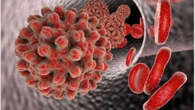 فائق الحساسية للكشف عن عدوى الالتهاب الكبدي الوبائي بي