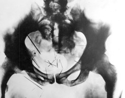 X-Ray of Albert Fish's pelvis showing 29 needles embedded within his body