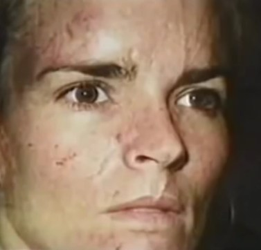 Photo of Nicole Brown after allegedly being beaten by OJ Simpson