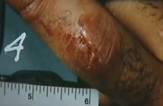Wound on OJ Simpsons finger - told officers he thought he may have cut it on a glass
