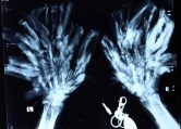 "Abul Bajandra's disease is called Epidermodysplasia Verruciformis, or ""Tree Man"" disease. Here's an X-Ray of his hands."