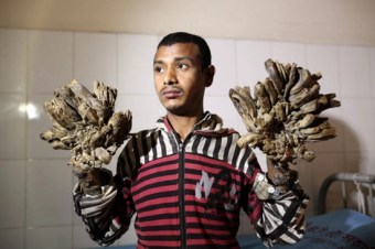 Abul Bajandra shows the tree-like growths on his hands