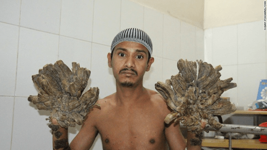Bangladesh Tree Man–rare disease causes tree-like branches to grow from his body thumb