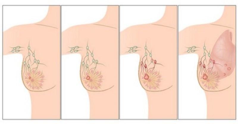 priciny-rakoviny-prsnika