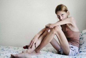 Lido di Camaiore, primo centro di cura per anoressia in Toscana