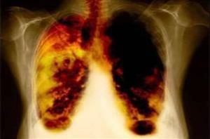 Sanità, Tbc facoltà medicina: ancora settimane per i corsi