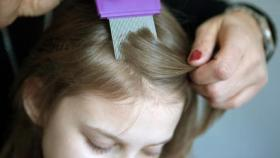 طرق فعالة لمكافحة القمل عند الأطفال