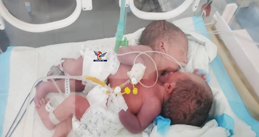 الأمم المتحدة تعتذر المساعدة.. توأم سيامي يمني يضع العالم والأمم المتحدة أمام حرج كبير!!