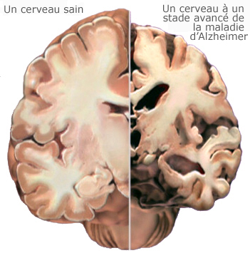 https://i1.wp.com/www.alz.org/brain_french/images/09a.jpg