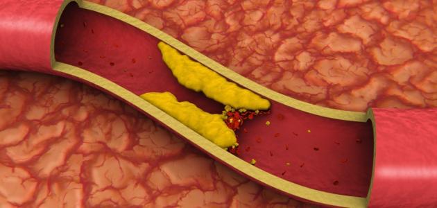 خفض الكولسترول يقي من الزهايمر