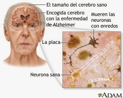 Fases del Alzheimer Bien Explicadas