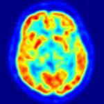 Crean examen que detecta Alzheimer 10 años antes de los primeros síntomas