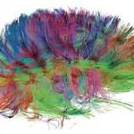 Escaner cerebral detectaría Alzheimer por 1.600$
