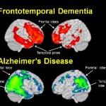 Demencia Frontotemporal. Diagnóstico y Tratamiento