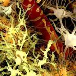Las placas amiloides (amarillo) se encuentran en el cerebro de personas con síndrome de Down y enfermedad de Alzheimer. Imagen: J.GARTNER