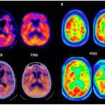 Diagnóstico alzhéimer: recomendaciones para el uso del estudio PET cerebral.