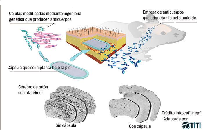 Prevención del Alzheimer a través del encapsulamiento celular. Celulas-encapsuladas-prevencion-alzheimer1