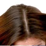 5 Tips Mengurangi Produksi Minyak pada Kulit Kepala