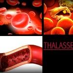Gejala, Penyebab & Faktor Risiko Thalassemia
