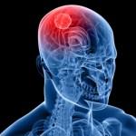 7 Langkah Efektif untuk Mencegah Stroke
