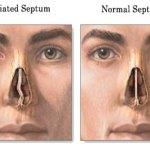 Prosedur & Komplikasi Operasi Deviasi Septum (Septoplasty)