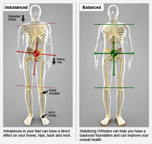custom orthotics in Mill Creek diagram at amazing life chiropractic