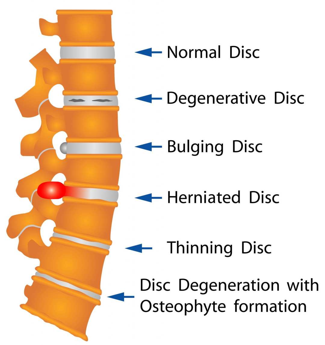 Disc therapy amazing life chiropractic and wellness a comprehensive package of non surgical flexiondistraction disc decompression therapy nutritional support and core exercises is the answer to relieving sciox Images