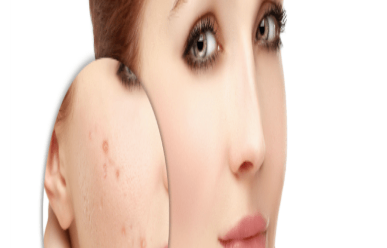Tips For Skin Care