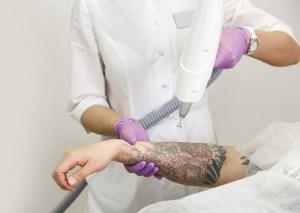 Лазерне видалення татуажу