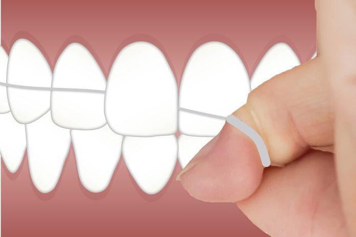 hilo dental 696x464 - Cómo tener una sonrisa brillante | Salud y Belleza