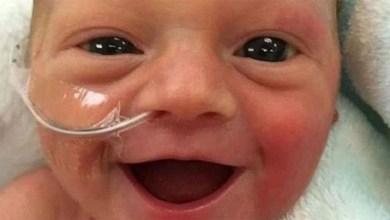 Photo of Πρόωρο μωρό λάμπει από χαρά 5 μέρες μετά την γέννησή του