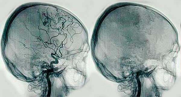 Resultado de imagen de angiografía