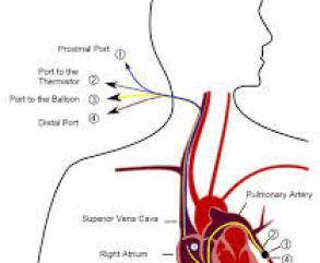 Cpt Code catheter placement