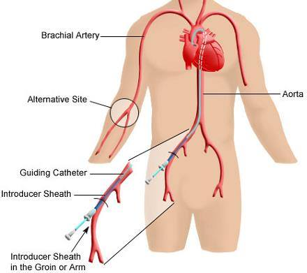 Easy trick to learn cpt code for peripheral angiography medical easy trick to learn cpt code for peripheral angiography medical coding guide sciox Image collections