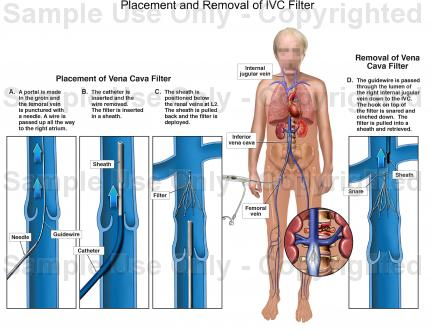 Superb tips for coding Intravascular Vena Cava Filter