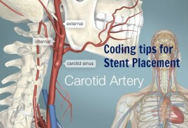 Secret tips Carotid Artery &Innominate Artery Stent Placement