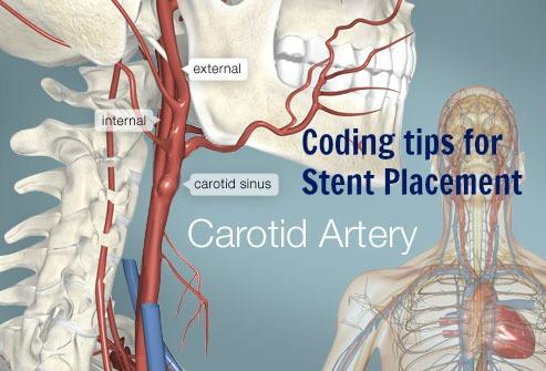 Secret tips Carotid Artery &Innominate Artery Stent Placement ...