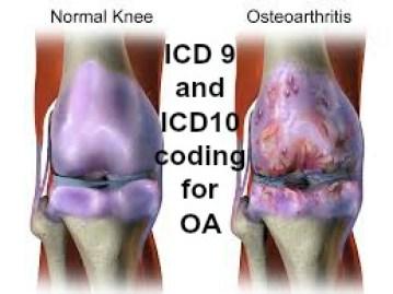 Osteoarthritis lower leg icd 10
