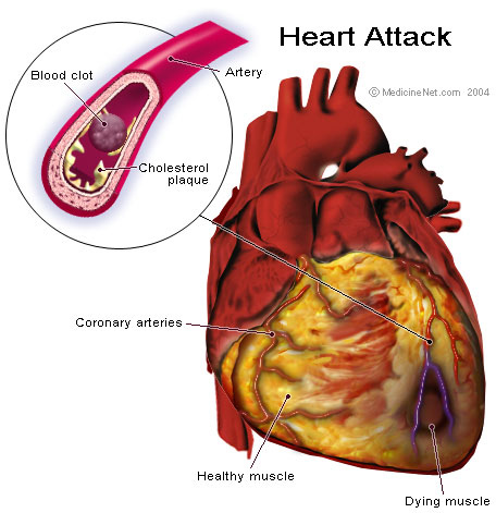 ICD 10 codes for Myocardial Infarction Coding Guide