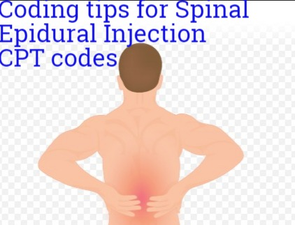 New Epidural Injection Cpt Code 62320 62322 62323 62324 And 62326 Medical Coding Guide