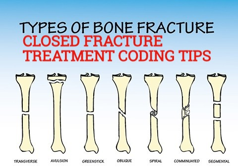Coding tips for Closed Fracture Treatment CPT codes