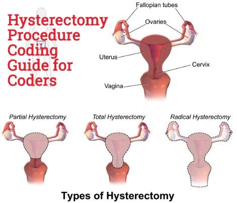 Billing for laparoscopic vaginal cuff biopsy excellent idea