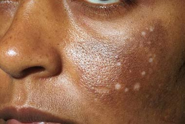 Hyperpigmentation of the Skin