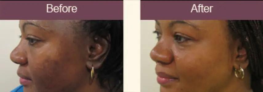 Few Ways To Treat Hyper Pigmentation A Million Styles