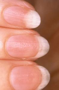 Cara Deteksi Penyakit dengan Mudah Menggunakan Telapak Tangan Kita